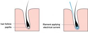 اپیلاسیون موهای زائد ناحیه تناسلی